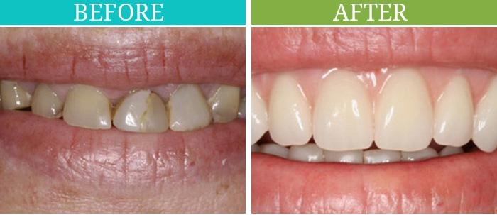 dentures-01