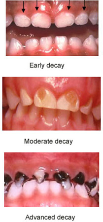 caries-decay-signs