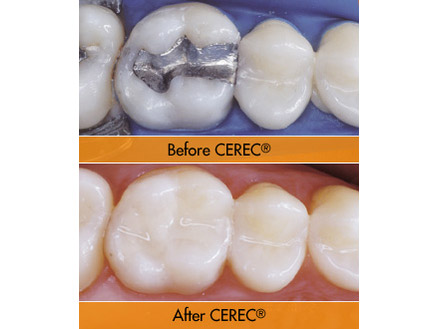 Cerec Restorations Adelaide