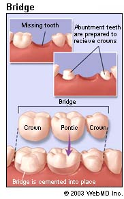 dental_health_bridges_bridge