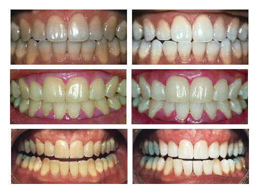 Tooth Whitening In Adelaide G P Dental Partners