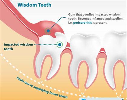 Wisdom teeth gp dental treatment of infection ccuart Choice Image